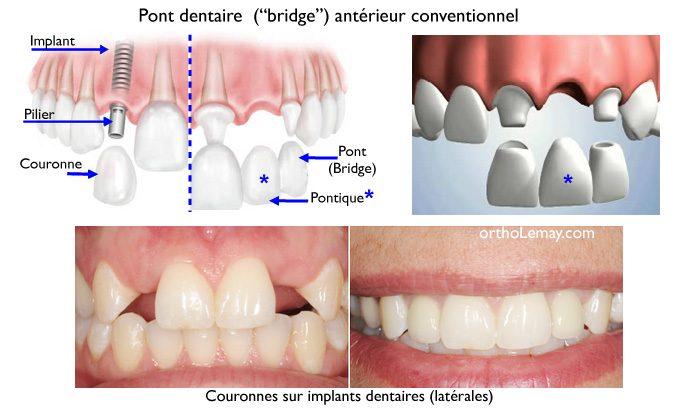 Pont-dentaire-anterieur-bridge-implant-pontique-orthodontie-Sherbrooke.jpg
